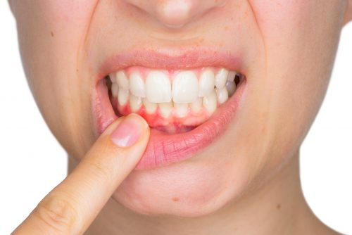 Woman pointing at red gums indicating gum disease